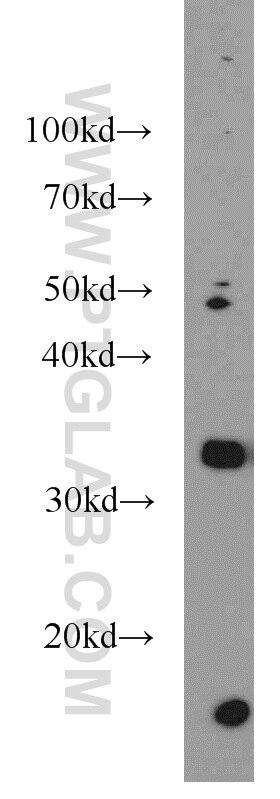 10638-1-AP;Raji cells