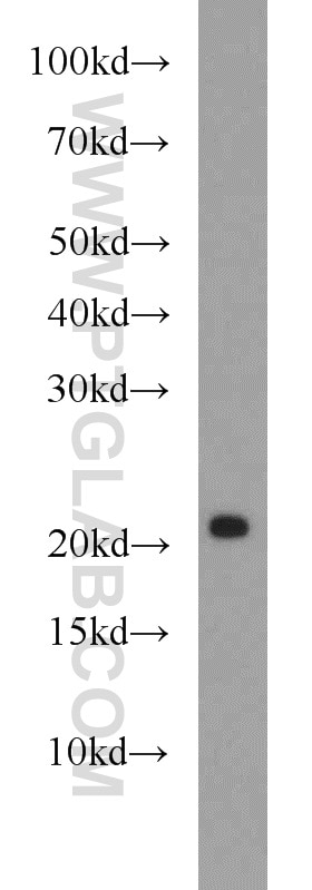 mouse brain tissue were subjected to SDS PAGE followed by western blot with  17988-1-AP(REEP1 antibody) at dilution of 1:1000 incubated at room  temperature ...