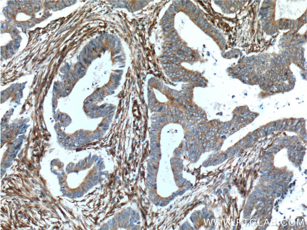 IHC staining of human colon cancer using 14643-1-AP