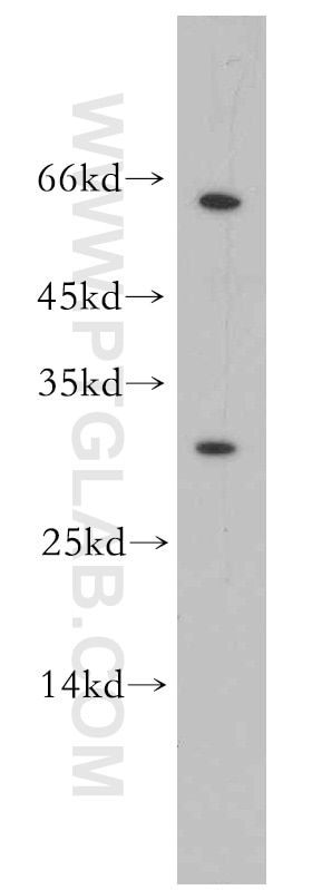 WB analysis of mouse liver using 15598-1-AP