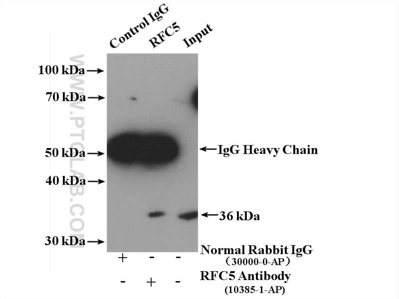 IP experiment of HeLa using 10385-1-AP