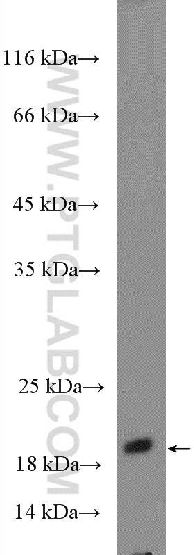WB analysis of fetal human brain using 15924-1-AP