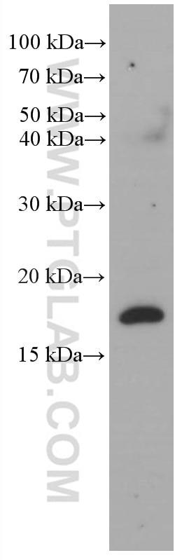 WB analysis of fetal human brain using 66714-1-Ig