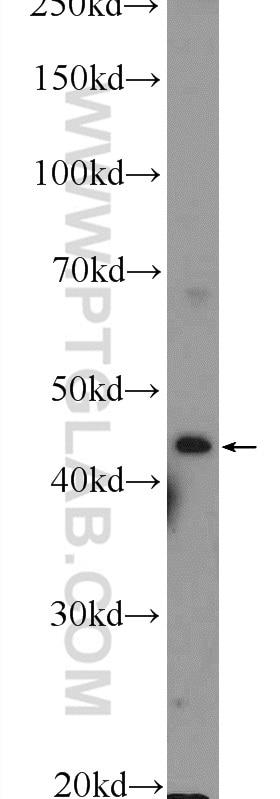 WB analysis of HEK-293 using 13574-1-AP
