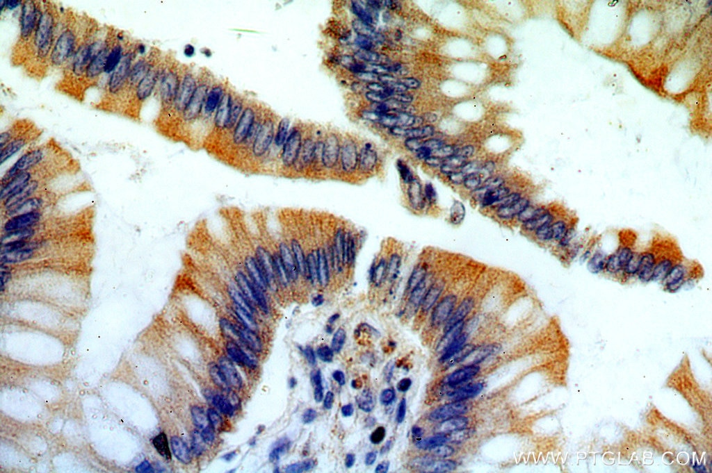IHC staining of human colon using 20248-1-AP