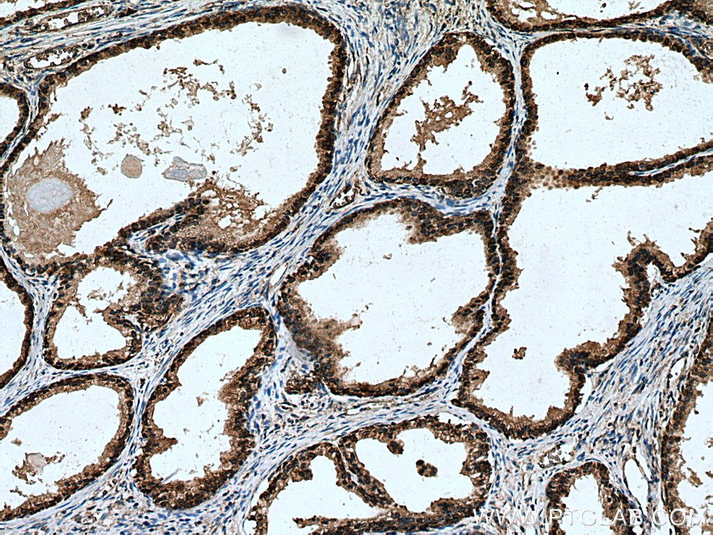 IHC staining of human prostate cancer using 29092-1-AP