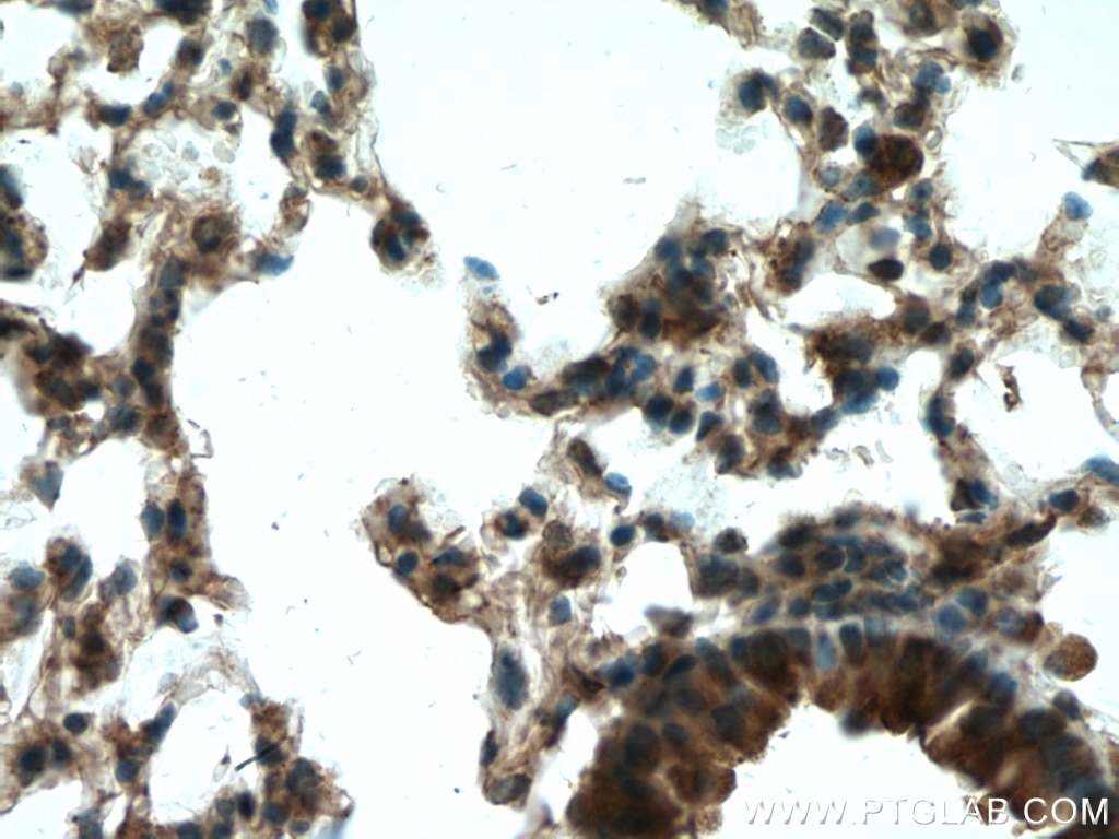 IHC staining of mouse lung using 12894-1-AP