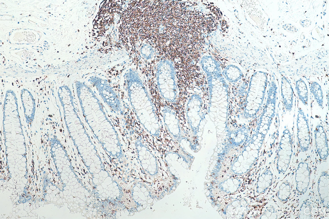IHC staining of human colon using 20103-1-AP