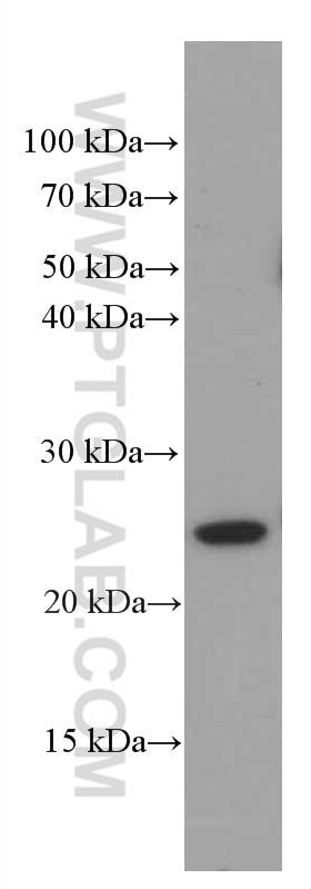 WB analysis of pig retina using 66521-1-Ig