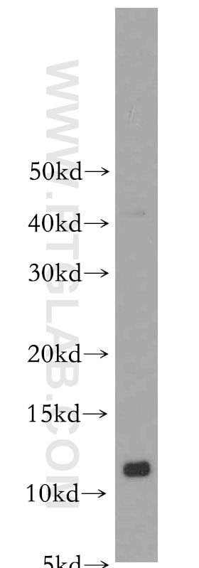 S100A10 Polyclonal antibody