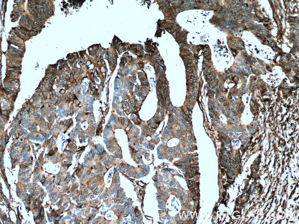 IHC staining of human colon cancer using 66227-1-Ig