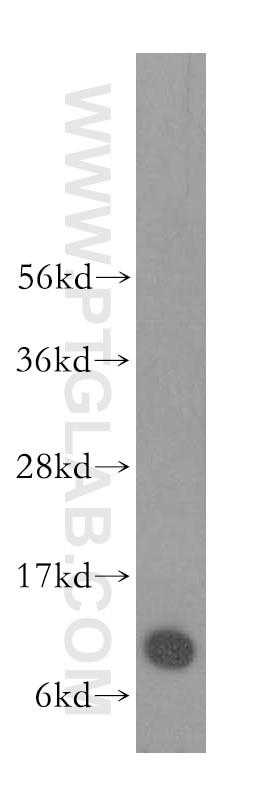 WB analysis of HeLa using 10245-1-AP