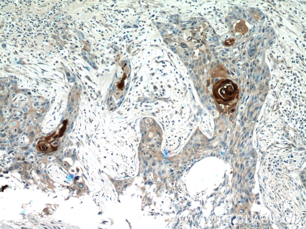 IHC staining of human oesophagus cancer using 13061-1-AP