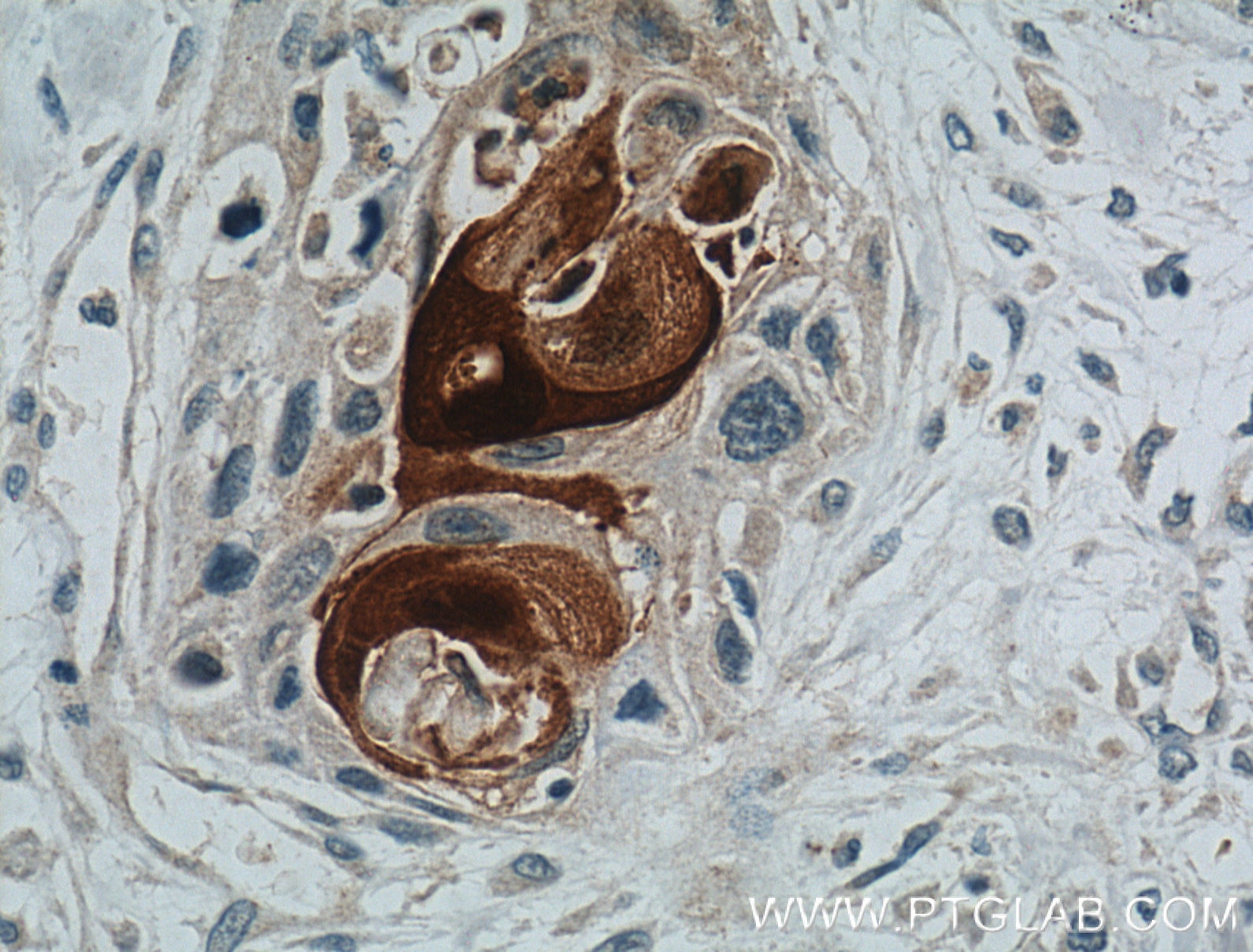 IHC staining of human oesophagus cancer using 26656-1-AP