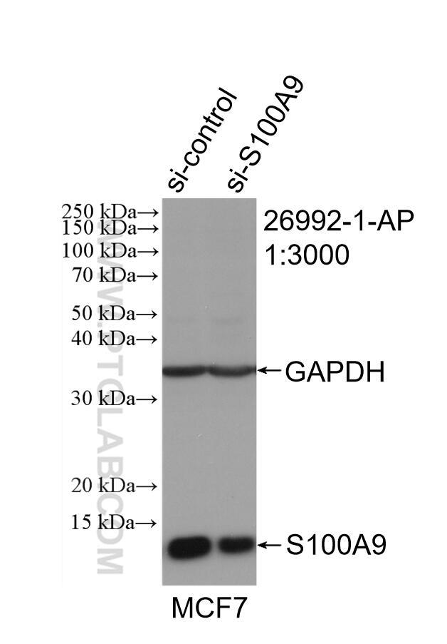WB analysis of MCF-7 using 26992-1-AP