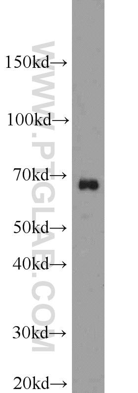 12586-1-AP;HepG2 cells