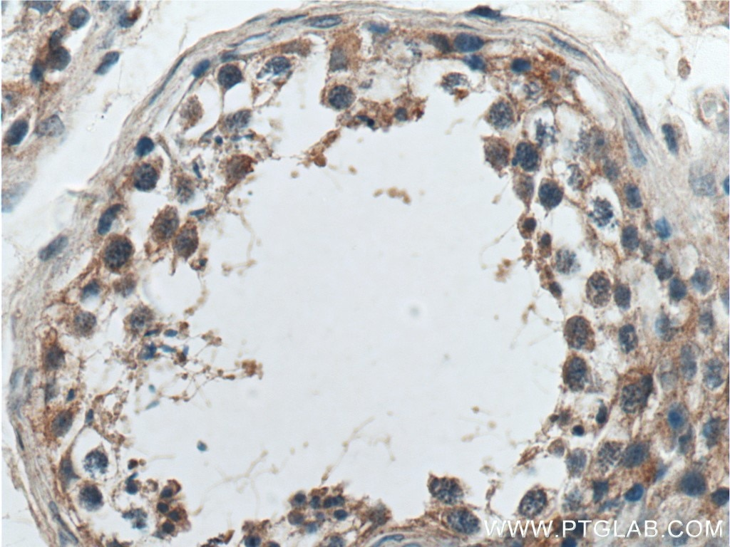 IHC staining of human testis using 17819-1-AP