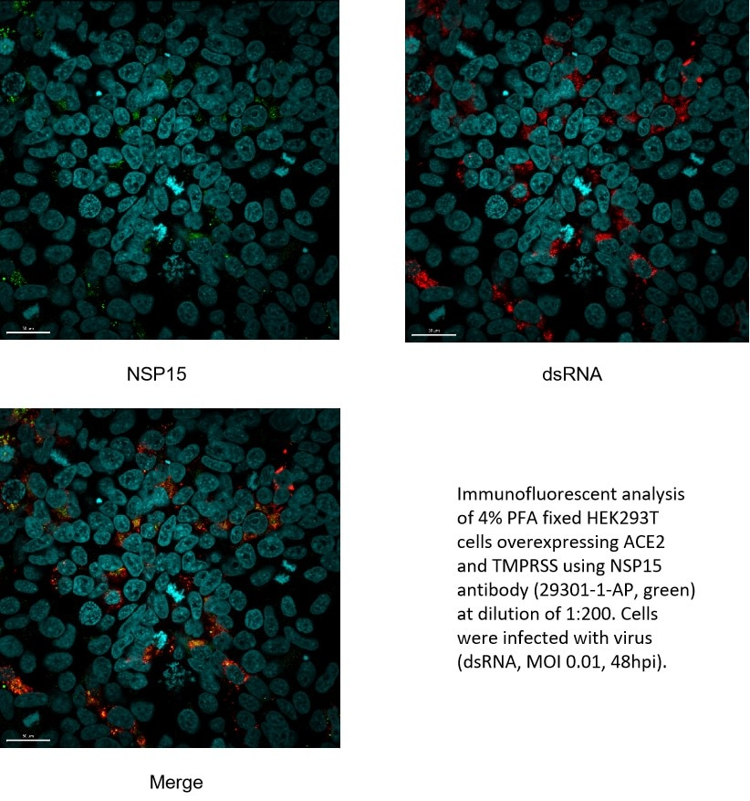 IF Staining of HEK-293T using 29301-1-AP