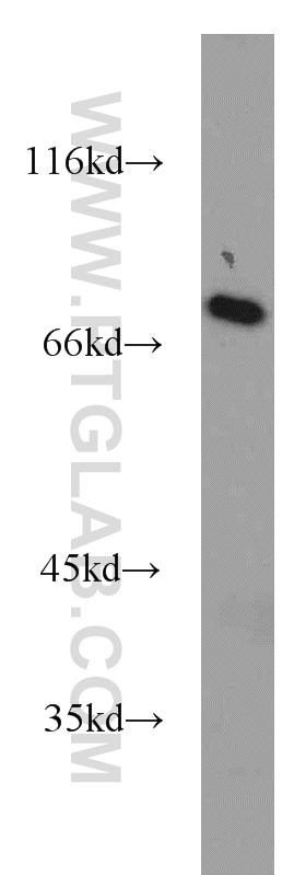 WB analysis of HeLa using 21377-1-AP
