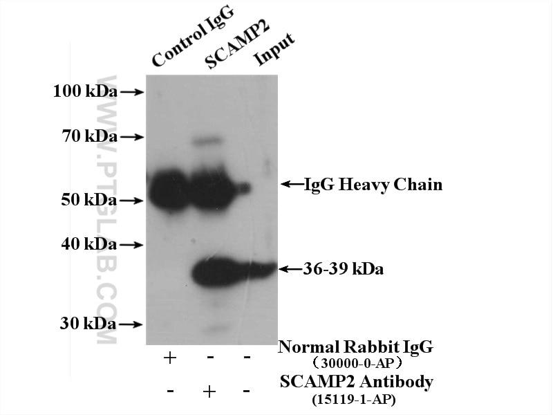 IP experiment of HepG2 using 15119-1-AP