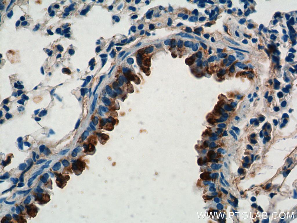 IHC staining of mouse lung using 10490-1-AP