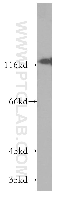 CD138/Syndecan-1 Monoclonal antibody