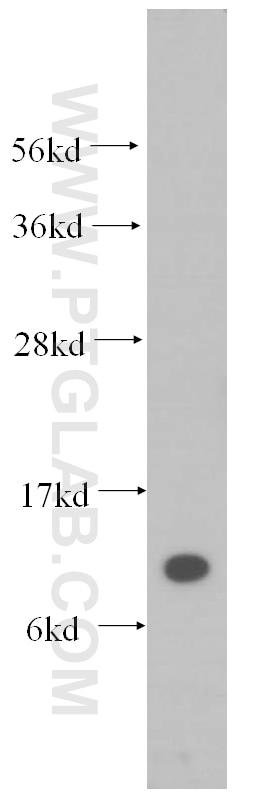 SEC61B-Specific Antibody 14846-1-AP | Proteintech