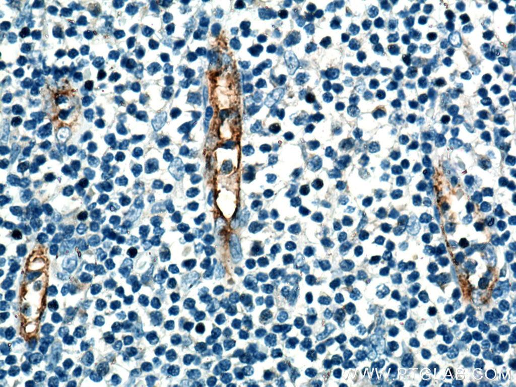 IHC staining of human tonsillitis using 20894-1-AP