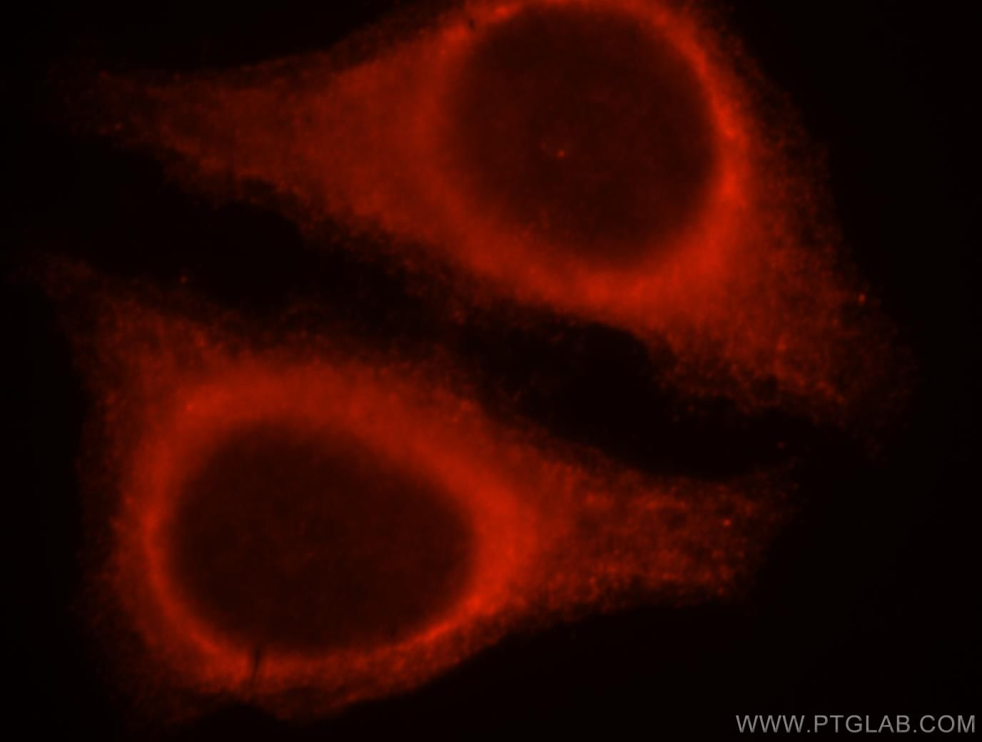 SERPINB13 Immunofluorescence IF 18045-1-AP SERPINB13 Antibody HSHUR7SEQ; HUR7; MGC126870; PI13; headpin