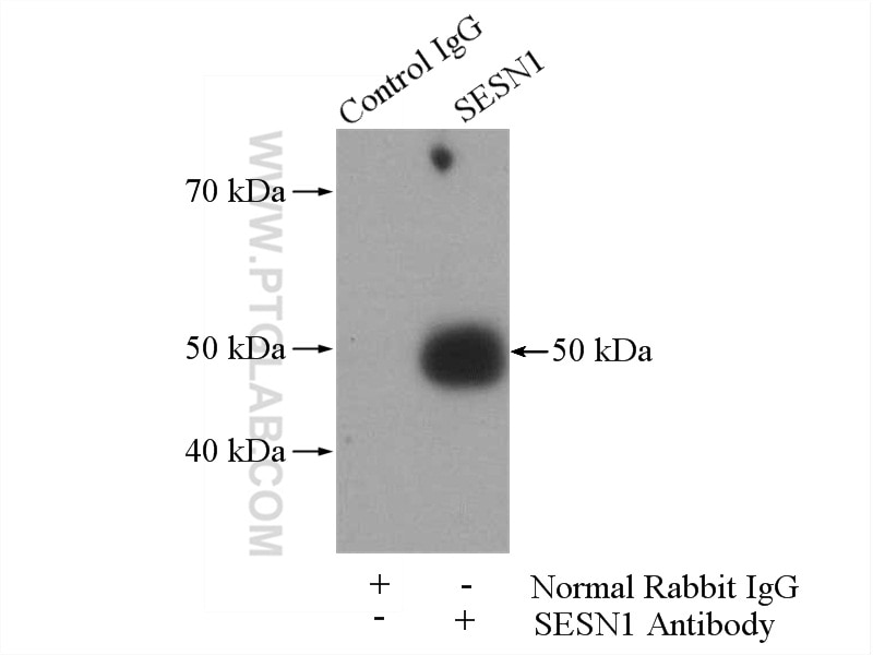IP experiment of mouse brain using 55010-1-AP