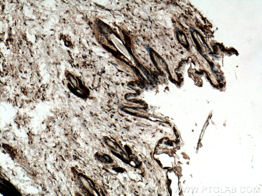 IHC staining of mouse skin using 10622-1-AP