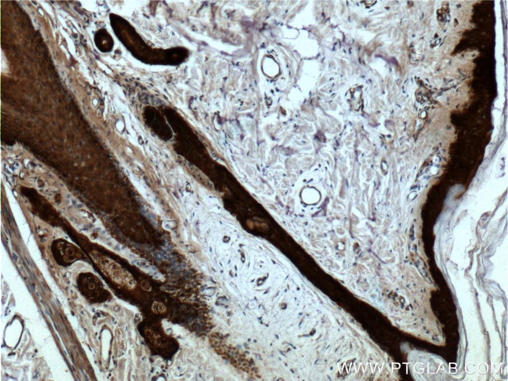 66251-1-Ig;human skin tissue