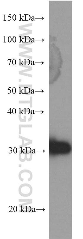 66251-1-Ig;A431 cells