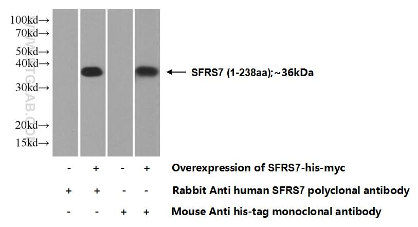 SFRS7 Polyclonal antibody