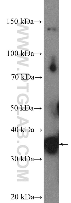 WB analysis of HeLa using 11044-1-AP