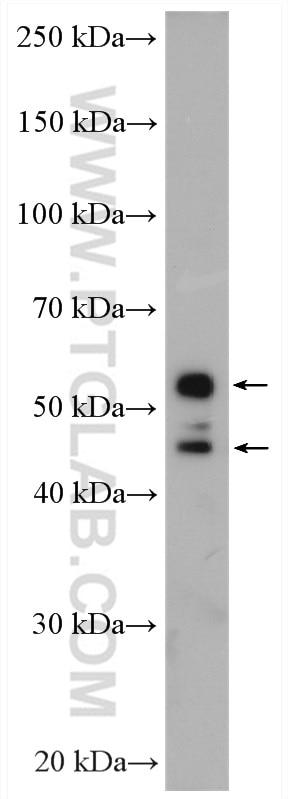 WB analysis of HeLa using 14149-1-AP