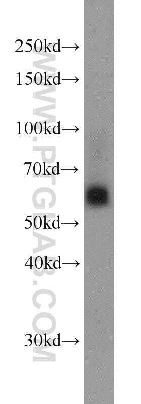 WB analysis of HeLa using 13886-1-AP
