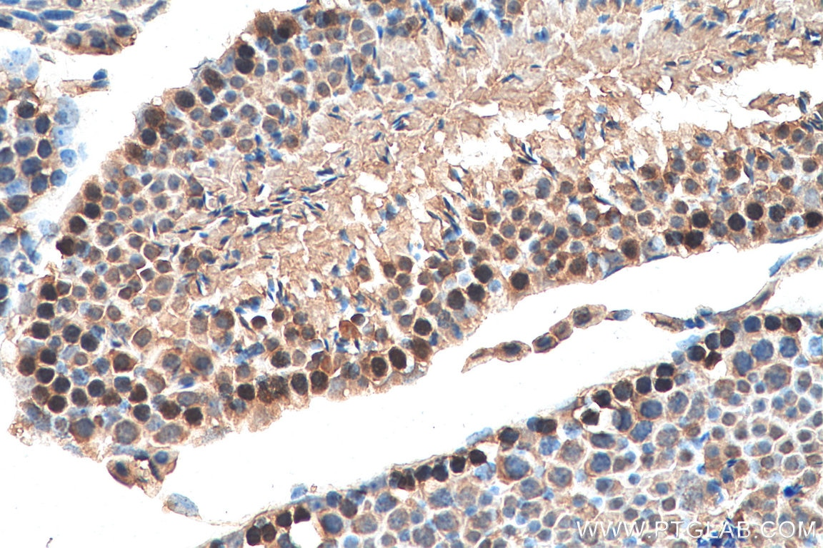IHC staining of mouse testis using 13161-1-AP