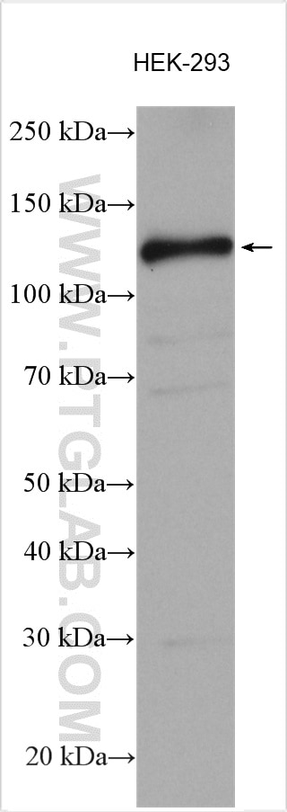 WB analysis using 13161-1-AP