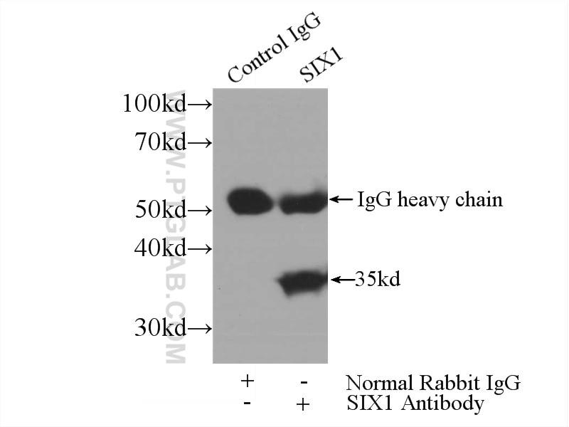 IP experiment of HEK-293 using 10709-1-AP