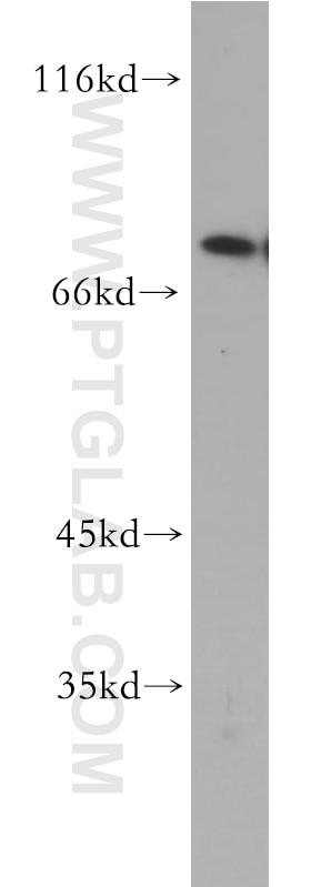 WB analysis of A431 using 19218-1-AP