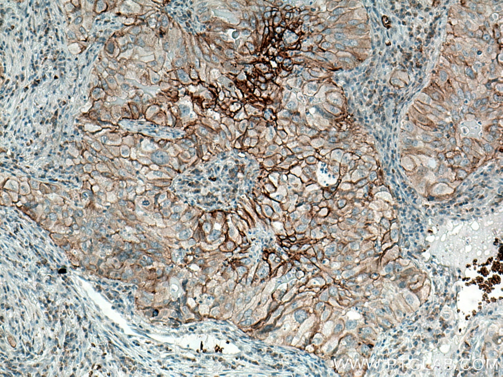 IHC staining of human lung cancer using 21829-1-AP