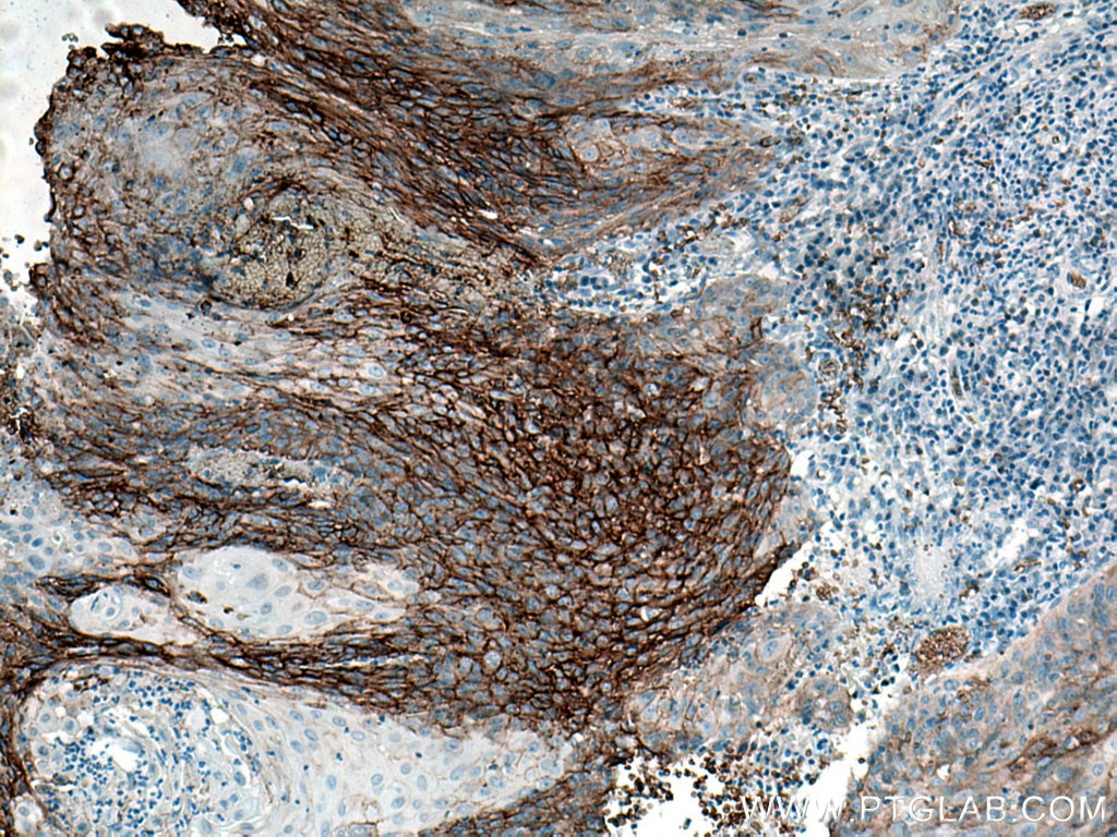 IHC staining of human cervical cancer using 21829-1-AP