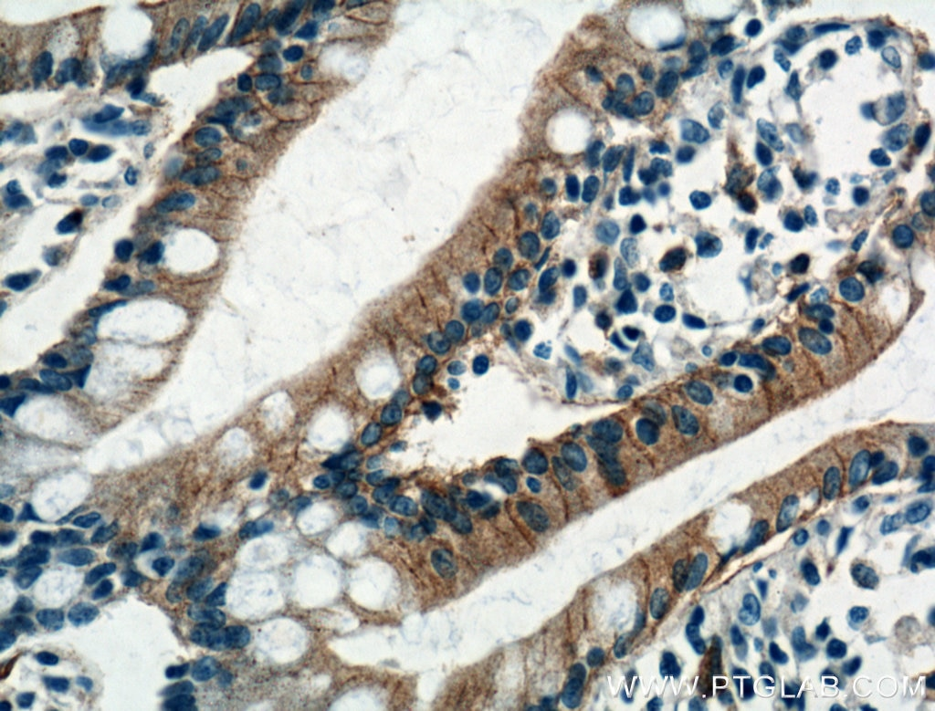 IHC staining of human small intestine using 20436-1-AP