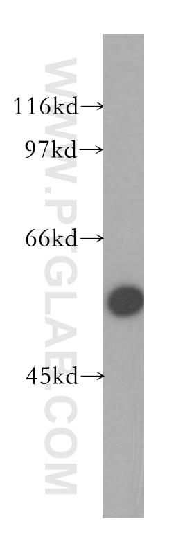 ZnT6 Polyclonal antibody