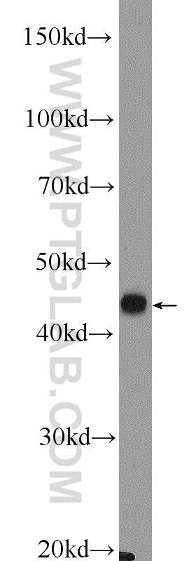 WB analysis of mouse pancreas using 16169-1-AP