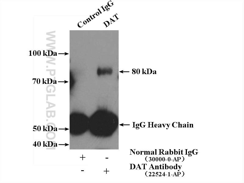 22524-1-AP;mouse brain tissue