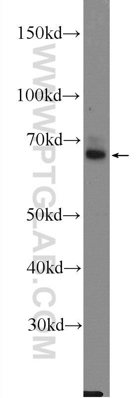 22524-1-AP;rat brain tissue