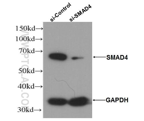 WB analysis of HepG2 cells using 51144-1-AP