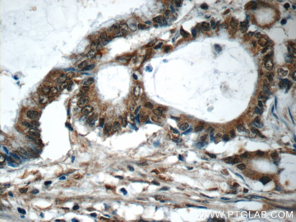 IHC staining of human colon cancer using 25494-1-AP